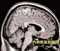 """ここから本文です 熱愛中は脳も""""ドキドキ"""" 恋人写真で脳活性化 理研などが特定"""