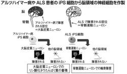 iPSから神経細胞