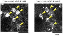マーモセット大脳皮質神経細胞