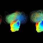 植物状態にある患者に「意識」があるかどうかを10分で判断する装置を開発