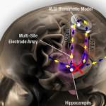 記憶力を劇的に向上させる「ブレインチップ」を脳に埋め込むプロジェクトが進行中