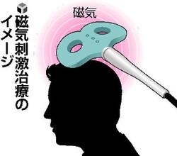磁気で脳刺激